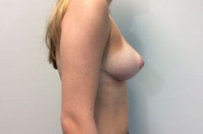 Breast Reduction Gallery - Patient 4594952 - Image 6