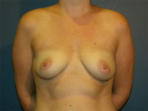 Mastopexy Gallery - Patient 4709862 - Image 8