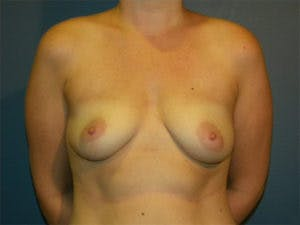 Mastopexy Gallery - Patient 4709862 - Image 1