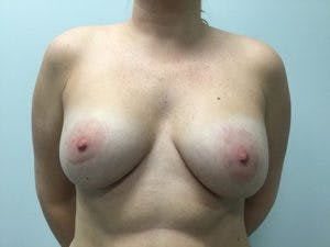 Mastopexy Gallery - Patient 4709862 - Image 2