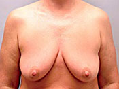 Mastopexy Gallery - Patient 4709863 - Image 9