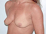 Mastopexy Gallery - Patient 4709864 - Image 10
