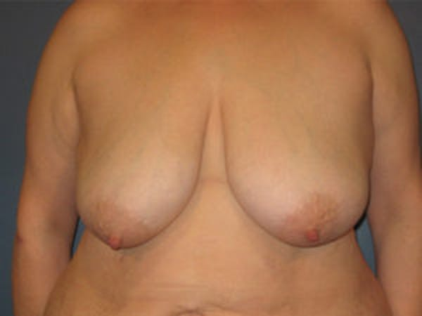 Mastopexy Gallery - Patient 4709865 - Image 1