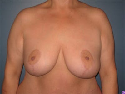 Mastopexy Gallery - Patient 4709865 - Image 2