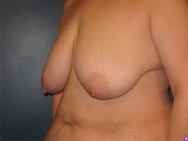 Mastopexy Gallery - Patient 4709865 - Image 3