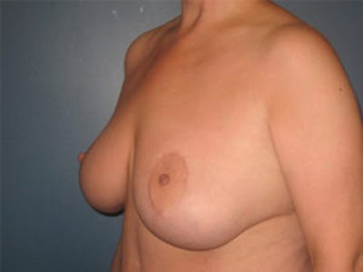 Mastopexy Gallery - Patient 4709865 - Image 4