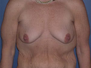 Mastopexy Gallery - Patient 4709866 - Image 1