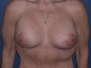Mastopexy Gallery - Patient 4709866 - Image 2