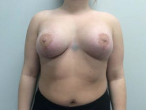 Mastopexy Gallery - Patient 4709867 - Image 2