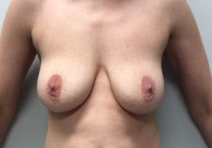 Mastopexy Gallery - Patient 4709868 - Image 1