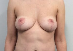 Mastopexy Gallery - Patient 4709868 - Image 2