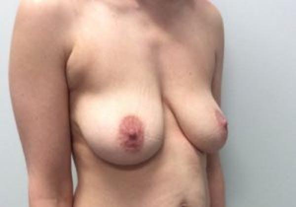 Mastopexy Gallery - Patient 4709868 - Image 5