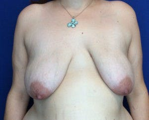 Mastopexy Gallery - Patient 4709870 - Image 1