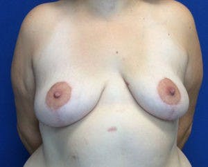 Mastopexy Gallery - Patient 4709870 - Image 2