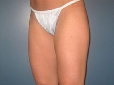 Liposuction Gallery - Patient 4726793 - Image 4