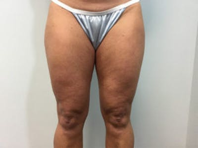 Liposuction Gallery - Patient 4726794 - Image 1