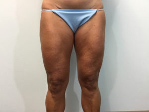 Liposuction Gallery - Patient 4726794 - Image 2