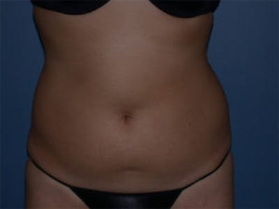Liposuction Gallery - Patient 4726795 - Image 1