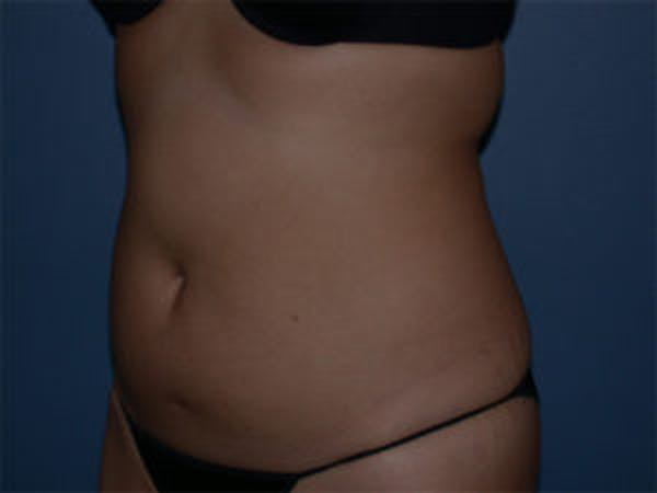 Liposuction Gallery - Patient 4726795 - Image 3