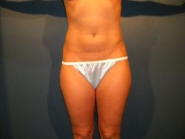 Liposuction Gallery - Patient 4726797 - Image 1