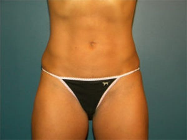 Liposuction Gallery - Patient 4726797 - Image 2