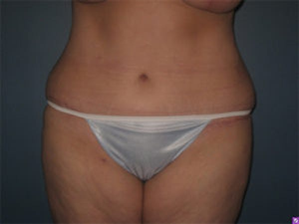 Liposuction Gallery - Patient 4726798 - Image 2