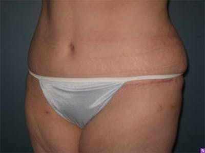 Liposuction Gallery - Patient 4726798 - Image 4