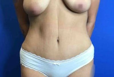 Liposuction Gallery - Patient 4726799 - Image 1
