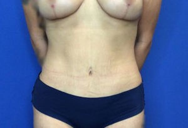 Liposuction Gallery - Patient 4726799 - Image 2