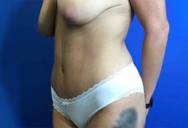 Liposuction Gallery - Patient 4726799 - Image 3