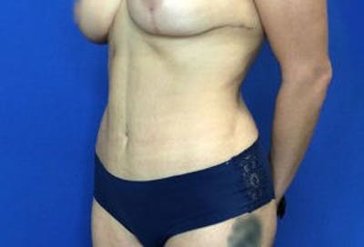 Liposuction Gallery - Patient 4726799 - Image 4