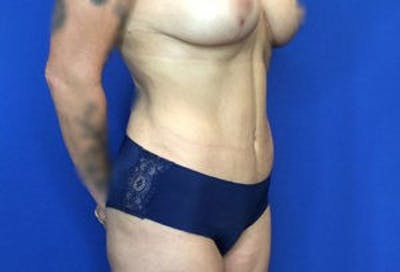 Liposuction Gallery - Patient 4726799 - Image 6
