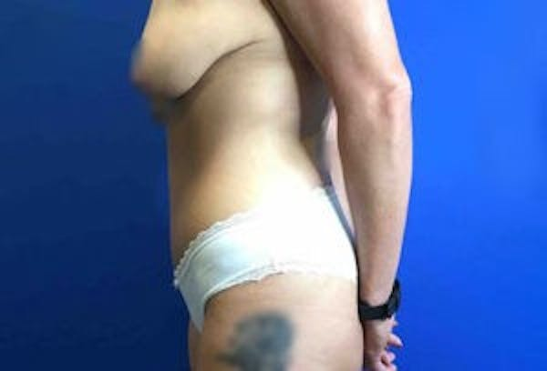 Liposuction Gallery - Patient 4726799 - Image 7