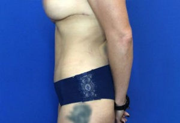 Liposuction Gallery - Patient 4726799 - Image 8