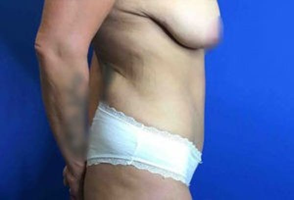 Liposuction Gallery - Patient 4726799 - Image 9
