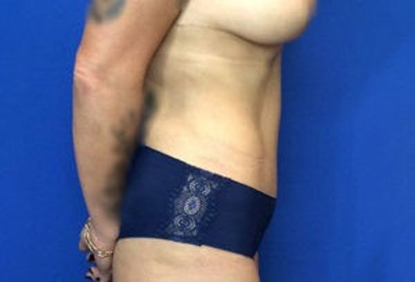 Liposuction Gallery - Patient 4726799 - Image 10