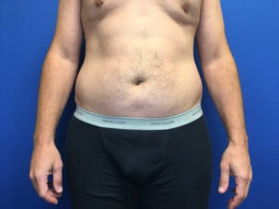 Liposuction Gallery - Patient 4726800 - Image 1