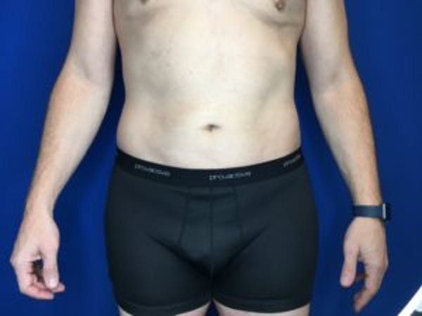 Liposuction Gallery - Patient 4726800 - Image 2