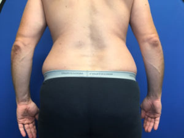 Liposuction Gallery - Patient 4726800 - Image 3