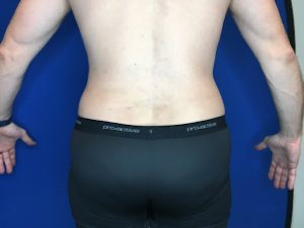 Liposuction Gallery - Patient 4726800 - Image 4