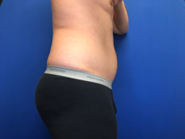 Liposuction Gallery - Patient 4726800 - Image 5
