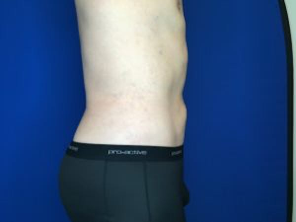 Liposuction Gallery - Patient 4726800 - Image 6