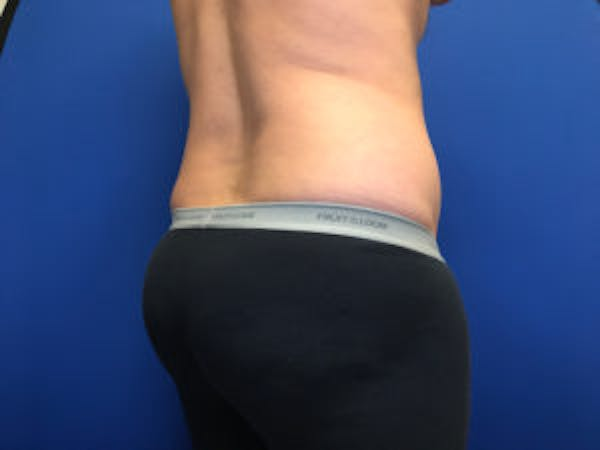 Liposuction Gallery - Patient 4726800 - Image 7
