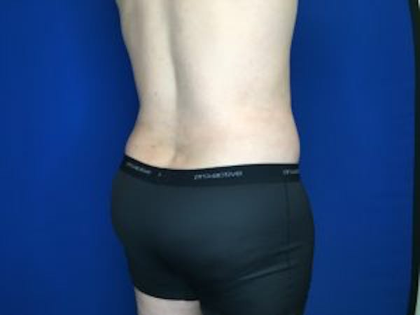 Liposuction Gallery - Patient 4726800 - Image 8