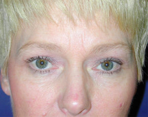 Blepharoplasty Gallery - Patient 4595019 - Image 2