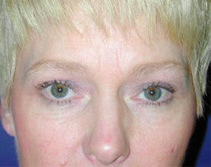 Blepharoplasty Gallery - Patient 4595019 - Image 1