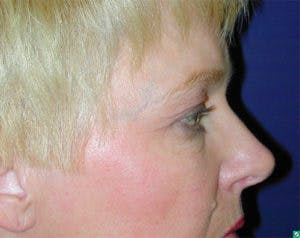Blepharoplasty Gallery - Patient 4595019 - Image 3