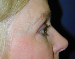 Blepharoplasty Gallery - Patient 4595019 - Image 4