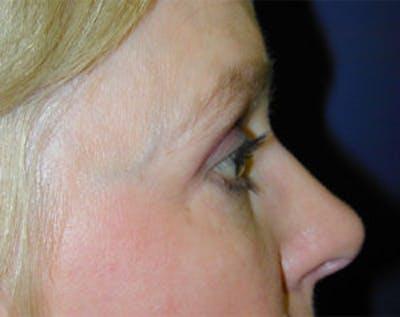 Blepharoplasty Gallery - Patient 4595019 - Image 4