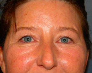 Blepharoplasty Gallery - Patient 4595024 - Image 3